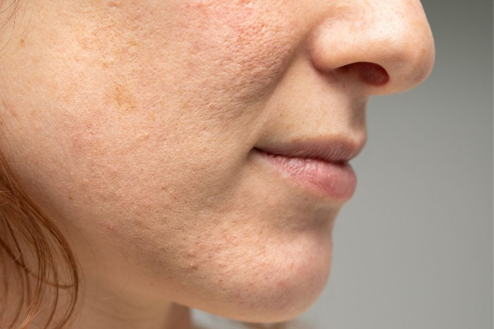 Dermacore_Acne Scar, Acne Scarring, LED Light Therapy, IPL Skin Rejuvenation, Chemical Peel, Microneedling, Telford, Shropshire, UK