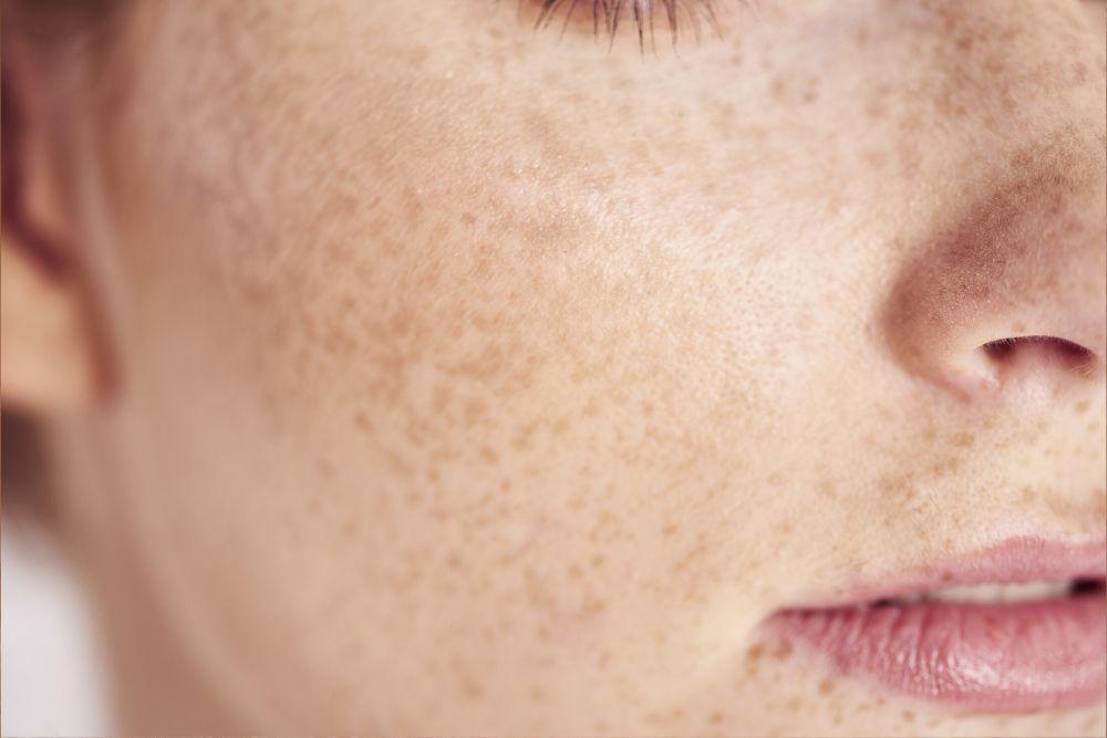 Dermacore_Laser, Skin & Body Clinic, Freckles, Freckle Remover, Freckle Removal, IPL Skin Rejuvenation, Telford, Shropshire, UK
