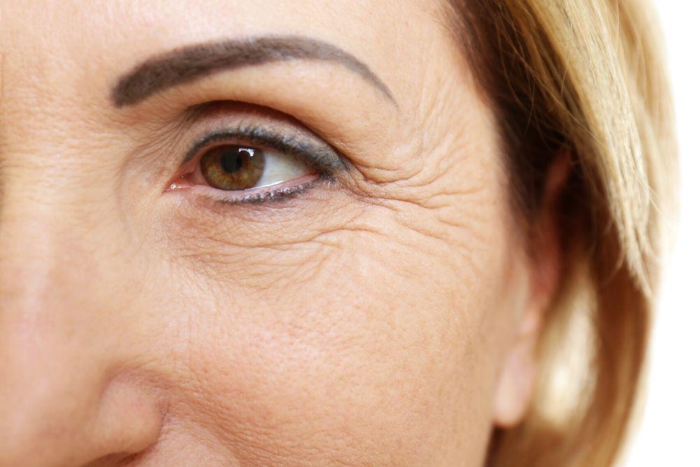 Dermacore_Loose Sagging Skin, HIFU Face Lift, Fine lines, Wrinkles, Microneedling, IPL Skin Rejuvenation, Telford, Shropshire, UK