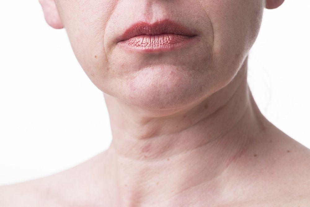 Dermacore_loose skin, Sagging Skin, Anti-Aging, Fine Lines & Wrinkles,Face lift, Non-Surgical Face Lift, IPL Skin Rejuvenation, HIFU Facelift, Radio Frequency Skin Tightening, Telford, Shropshire, UK