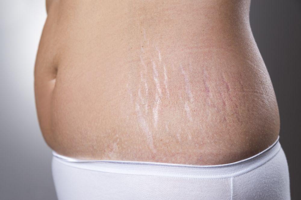 Dermacore_Stretch Mark Removal, Radio Frequency Skin Tightening, Cavitation, Mummy Tummy Telford, Shropshire