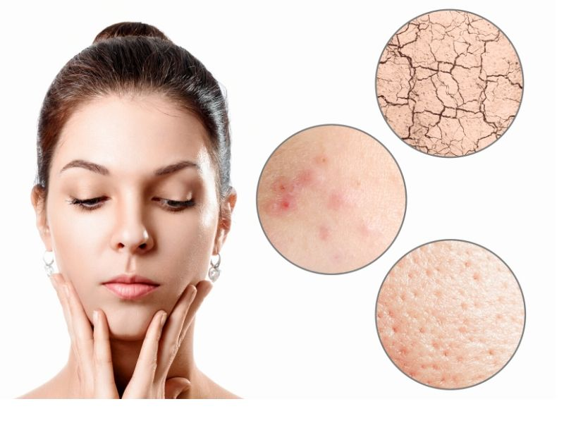 Dermacore_ Facial Concerns, Acne, Acne Scarring, Thread Veins, Enlarged Pores, Pigmented Skin, Freckles, Sun Spots, Age Spots, Stains, Telford, Shropshire, UK