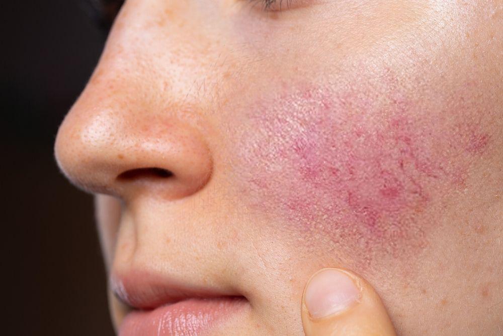 Dermacore, Redness, Rosacea Treatment, IPL Skin Rejuvenation, Telford, Shropshire, UK