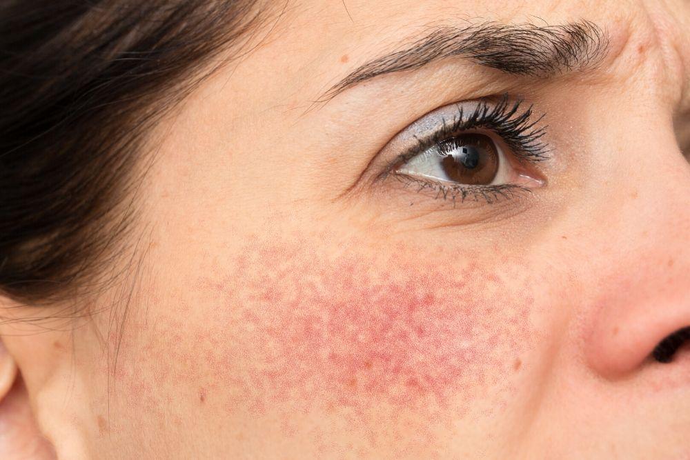 Dermacore_IPL Skin Rejuvenation, Rosacea, Redness, Facial Thread Veins, Spider Veins Removal, Telford, Shropshire UK
