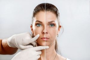 Dermacore_Facial Rejuvenation Treatments, Anti Aging Treatments, Dermaplaning, IPL Photo Facial, Microneedling, Microdermabrasion, Telford, Shropshire, UK