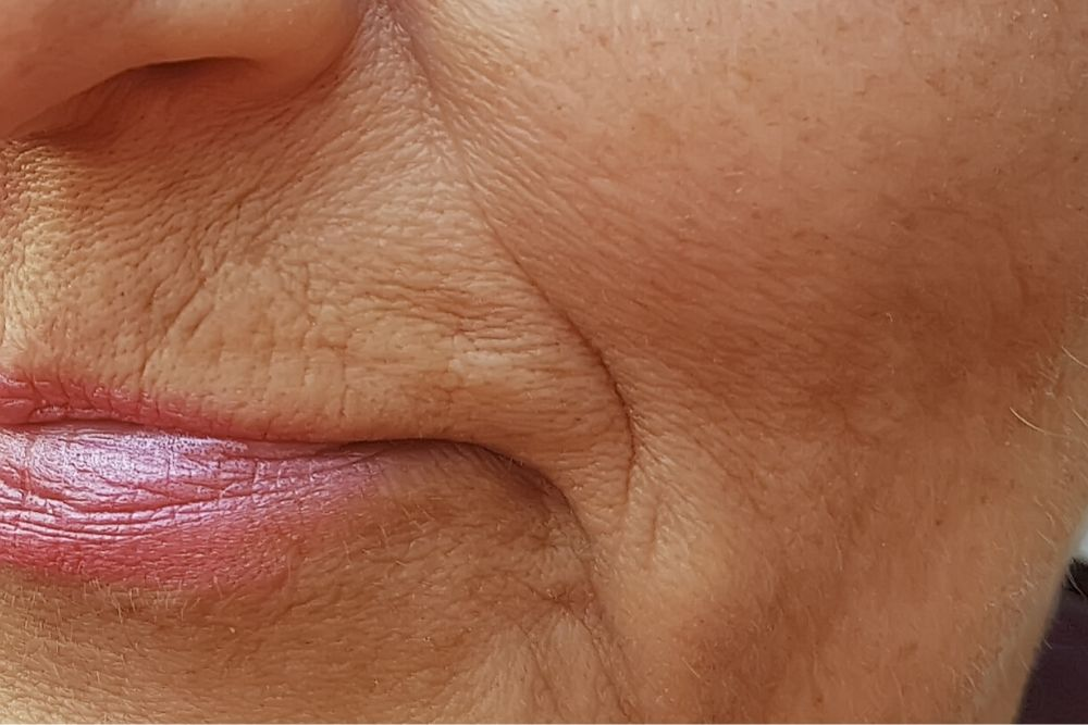 Dermacore_Facial Lines, Fine lines, Wrinkles, Aging Skin, Sagging Skin, HIFU Face Lift, Jowl Lift, Telford, Shropshire, UK