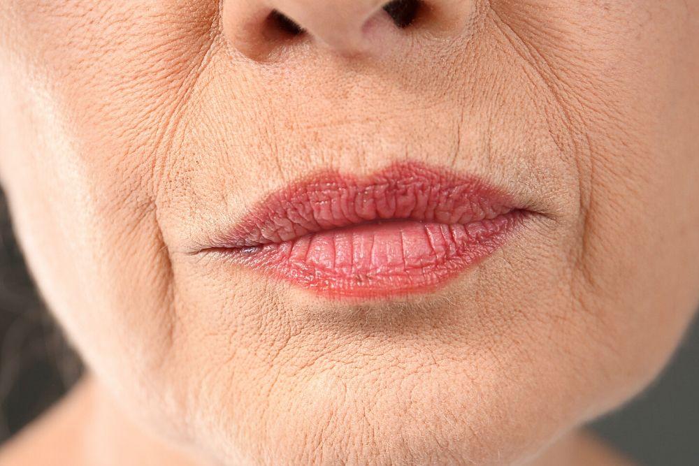 Dermacore_Fine lines, Wrinkles, Aging Skin, Sagging Skin, HIFU Face Lift, Jowl Lift, Telford, Shropshire, UK