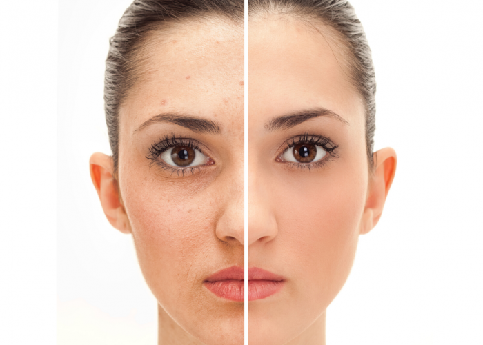 Before & After, Dermacore Laser Skin & Body Clinic, Anti-ageing, pigmentation removal, uneven skin tone, dull tired skin, Telfod, Shropshire