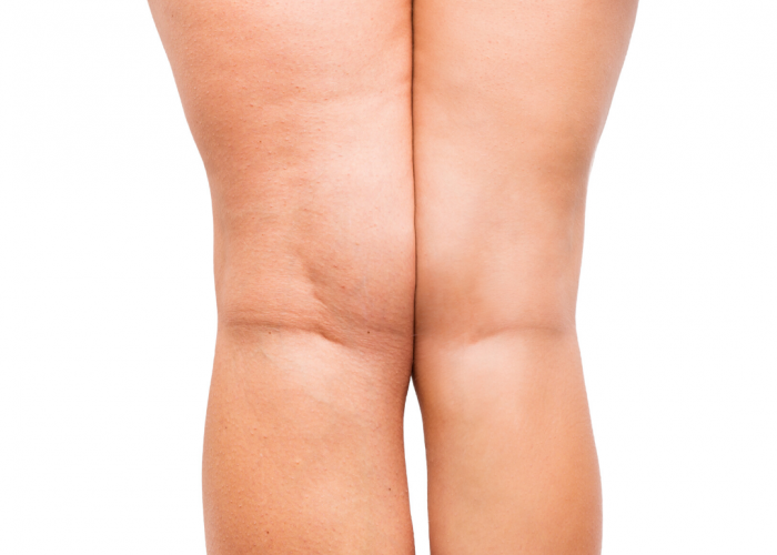 Dermacore_ Laser Skin & Body Clinic, Cellulite Treatments with Cavitation, Radio Frequency Skin Tightening & Fat Freezing
