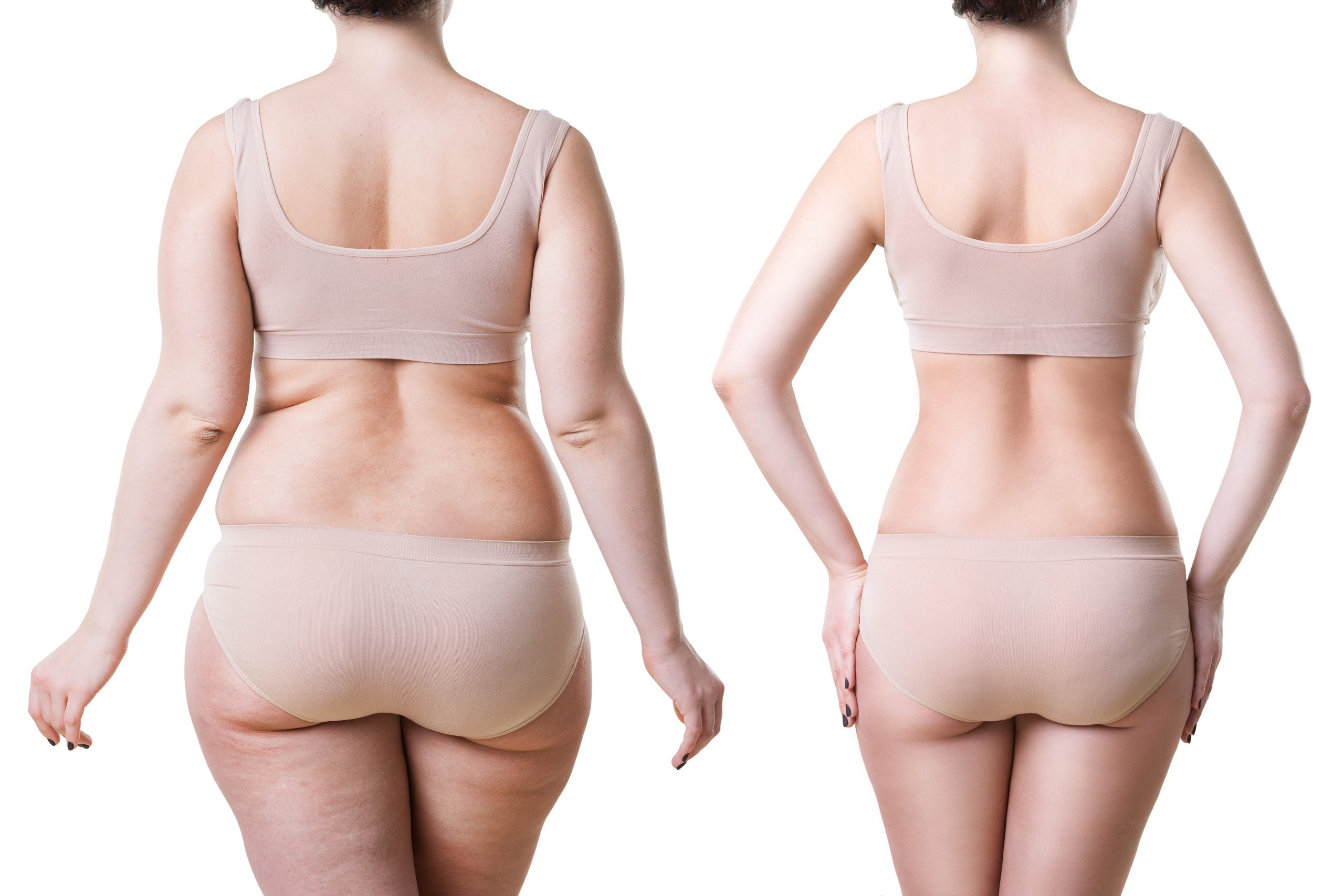 Dermacore body sculpting, fat loss, fat reduction, permanent, inch loss, non-invasive telford shropshire