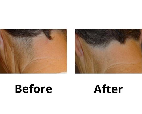 Laser Hair Removal_ Permanent, Painless, Before & After, Ingrown Hair, West Midlands