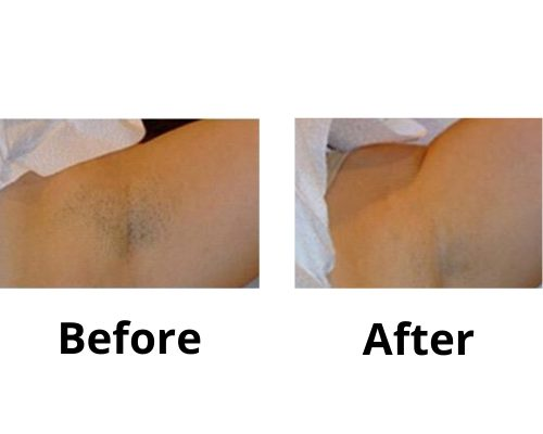 Arm Pit, Laser Hair Removal Before & After