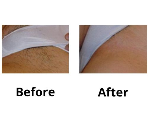 Before & After Bikini, Laser Hair Removal