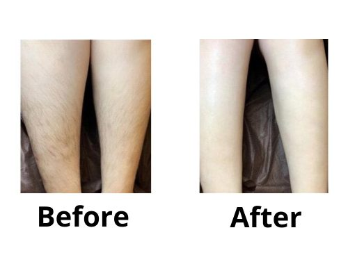 Legs Before & After Laser Hair Removal, Ingrown Hair, telford