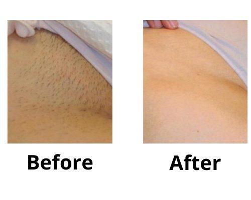 Bikini Before & After, Laser Hair removal, Ingrown hair, Telford