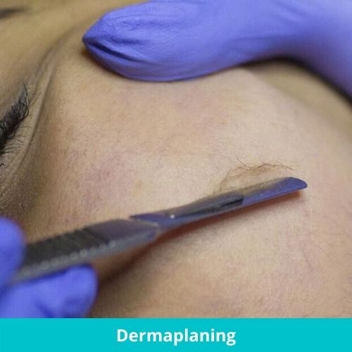 Dermacore_ Vellus Hair, Facial Hair, Dermaplaning Facial, Smooth Skin, Dry Dull Skin, Anti Aging Facial, Telford, Shropshire