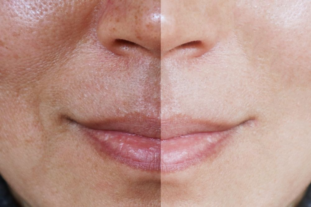 Dermacore Uneven Skin tone Telford IPL, Micrpneedling, Microdermabrasion, Led Light therapy, Chemical Peel