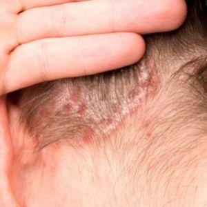 Psoriasis, Itchy Skin, Eczema, Moles, Rash, Consultant Dermatologist, Telford, Shropshire, Dermacore