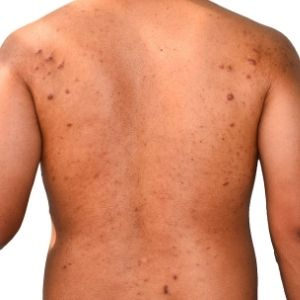 Keloid Scarring, Steroid Injections, Telford, Shropshire, Private Dermatologist